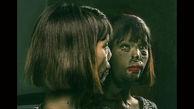 زشت ترین خانم مدل جهان چه سرنوشت شومی داشت! / پدر صورتش را با اسید سوزاند!+عکس