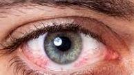 خوددرمانی آلرژی های چشمی ممنوع!