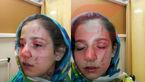 اقدام وحشیانه یک زن با فائزه 10 ساله در یک کوچه بن بست در اصفهان + عکس و فیلم دوربین مداربسته