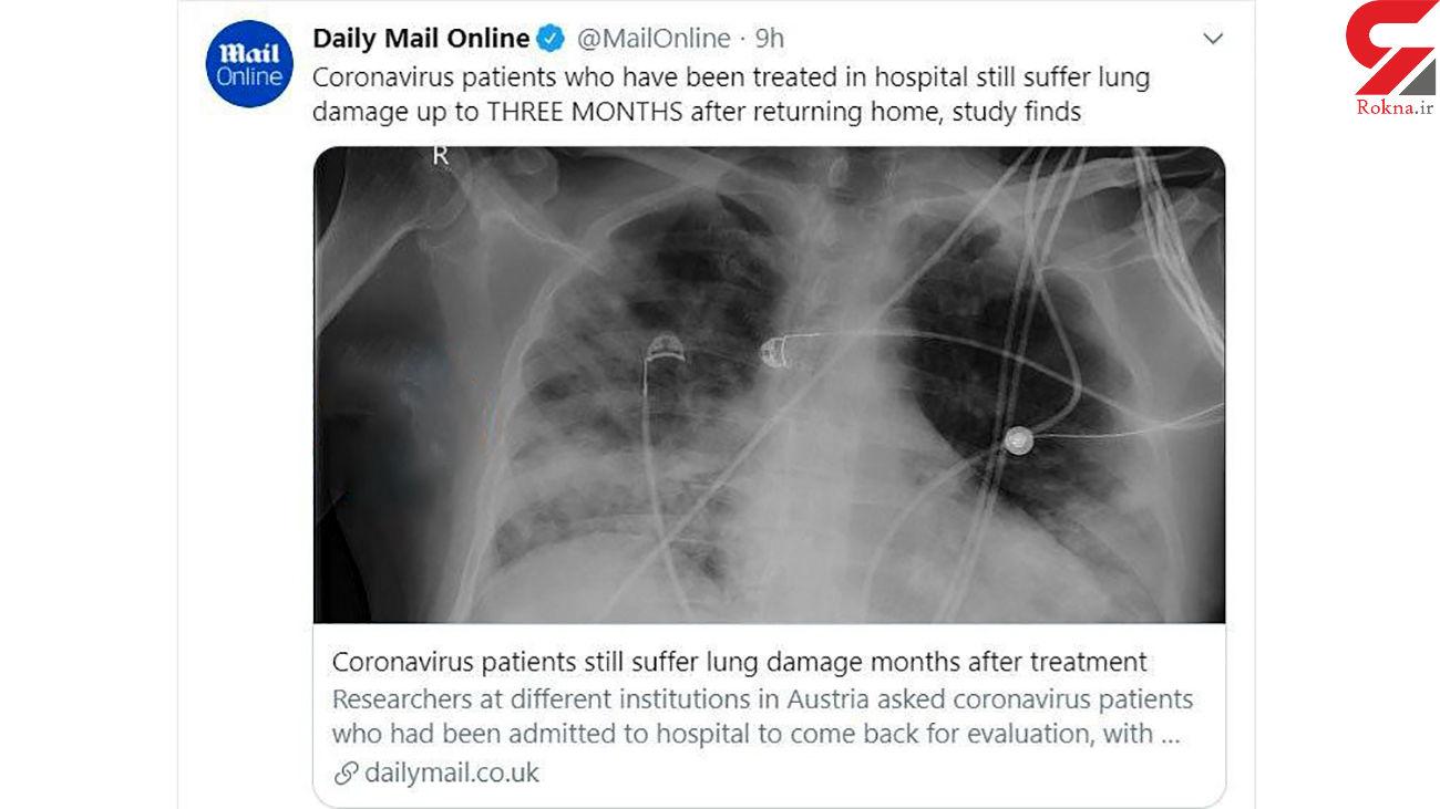 یک حادثه وحشتناک برای کسانی که از بیماری کرونا نجات پیدا می کنند