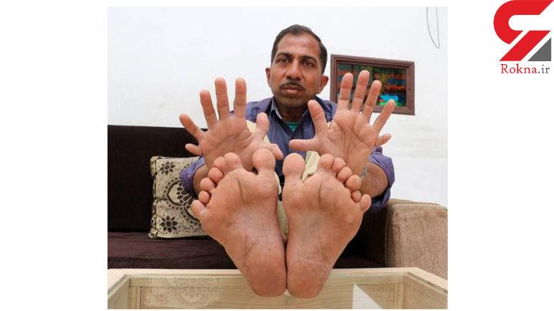 مرد عجیب الخلقه در هند زندگی می کند!+عکس