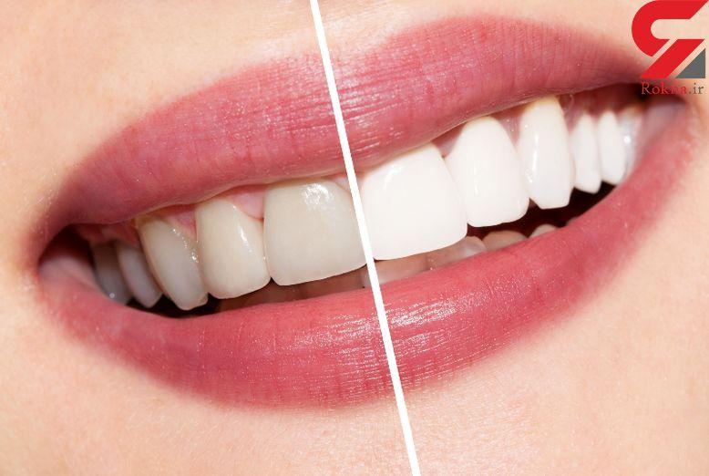 زرد شدن دندان های سفید به خاطر این عادت های ناپسند