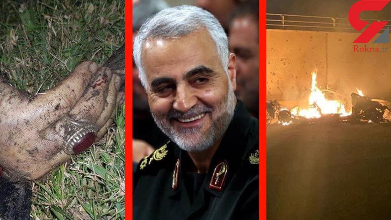 اولین عکس از پیکر و انگشتر معروف سردار شهید سلیمانی + تصاویر دیده نشده