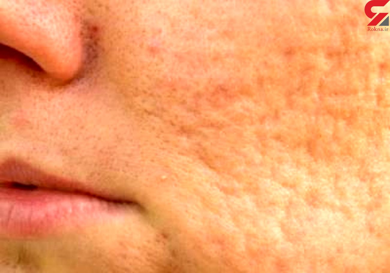 صابون مناسب برای پوست های آکنه دار