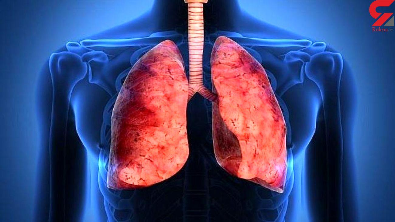 تمرینات تنفسی برای تقویت ریه ها در بحران کرونا