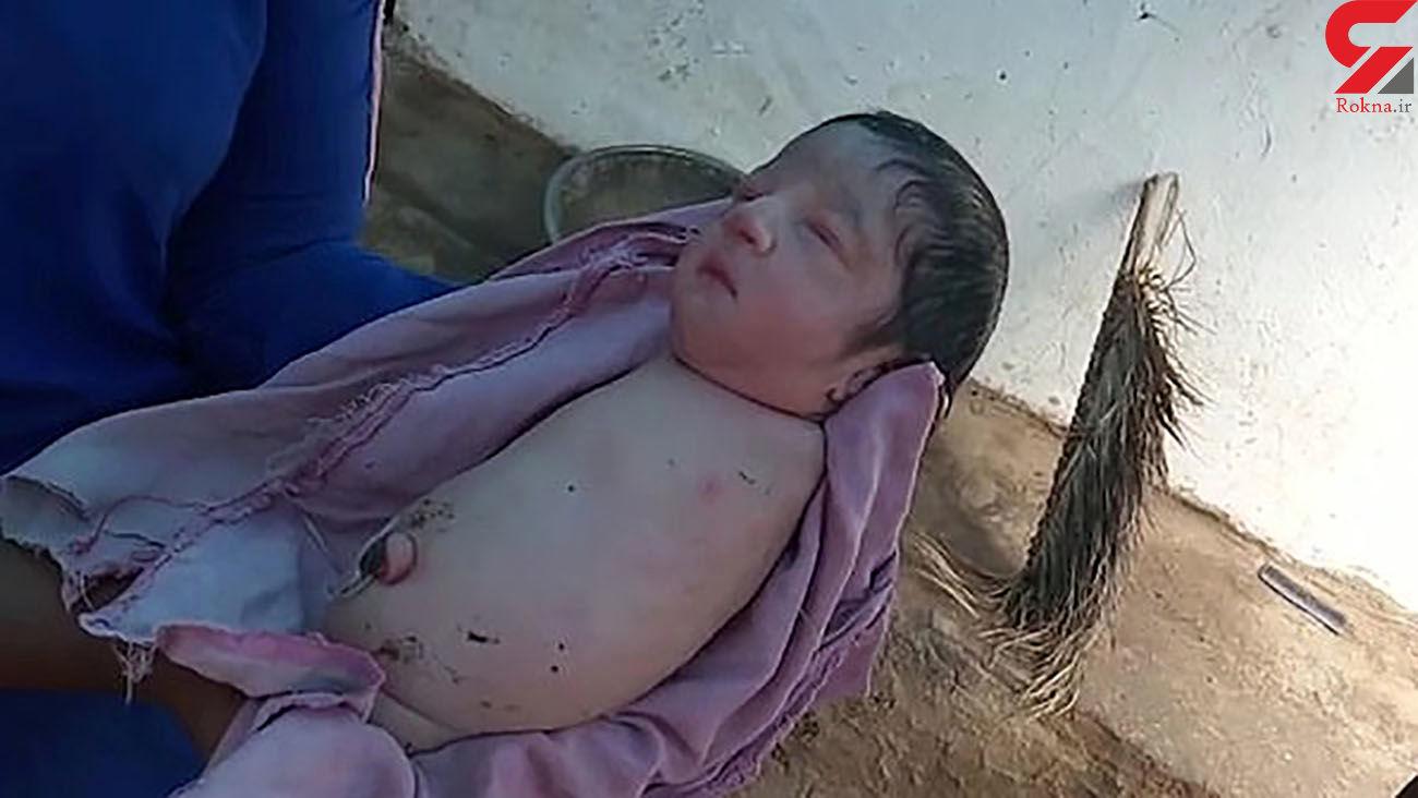 عکس / تولد نوزاد عجیب الخلقه / هیچ آینده ای در انتظار این کودک نیست