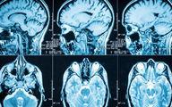 مغز افراد قاتل با دیگران متفاوت است