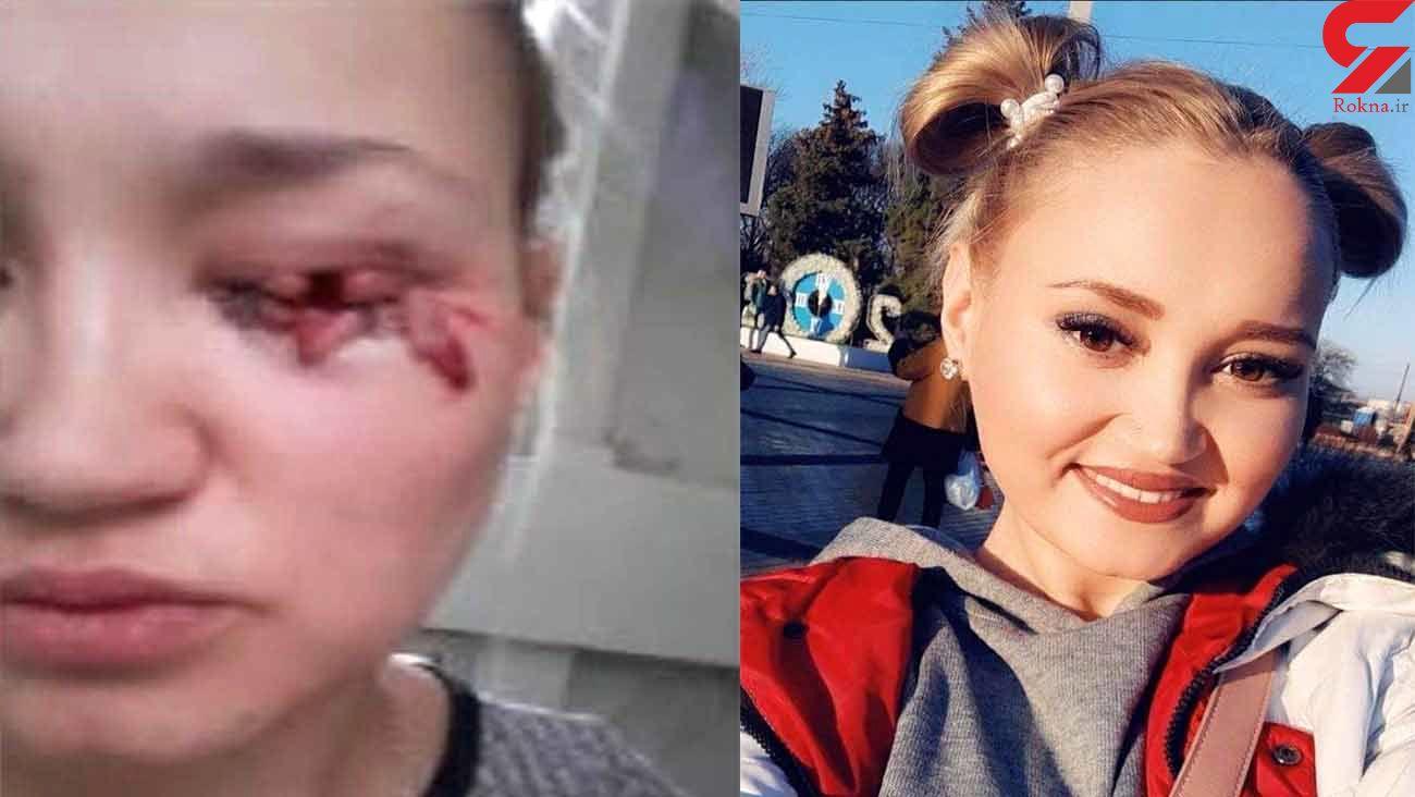 فیلم لحظه حمله سگ ولگرد به دختر جوان + عکس قبل و بعد از گازگرفتگی