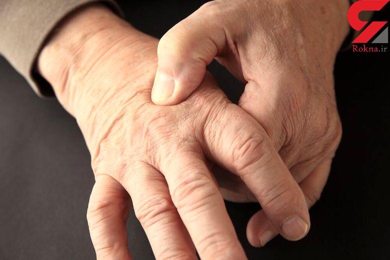 آب و هوا بر شدت درد ناشی از آرتروز موثر است