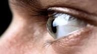 حقایقی درباره بیماری چشم به نام آب سیاه