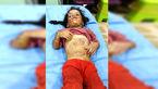 این 2 دختر تا حد مرگ شکنجه شدند +عکس