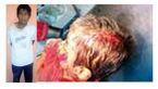 مجروح شدن پسر 3 ساله در دفاع از مادر+عکس
