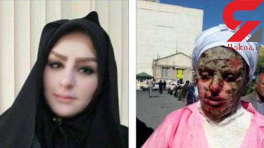 پرونده 5 اسیدپاشی پی در پی در تبریز + عکس