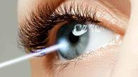 آنچه در مورد بعضی از انواع جراحی های چشم باید بدانید +هزینه