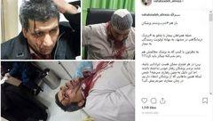 بیمار عصبی پزشک مشهدی را با چاقو سلاخی کرد+عکس