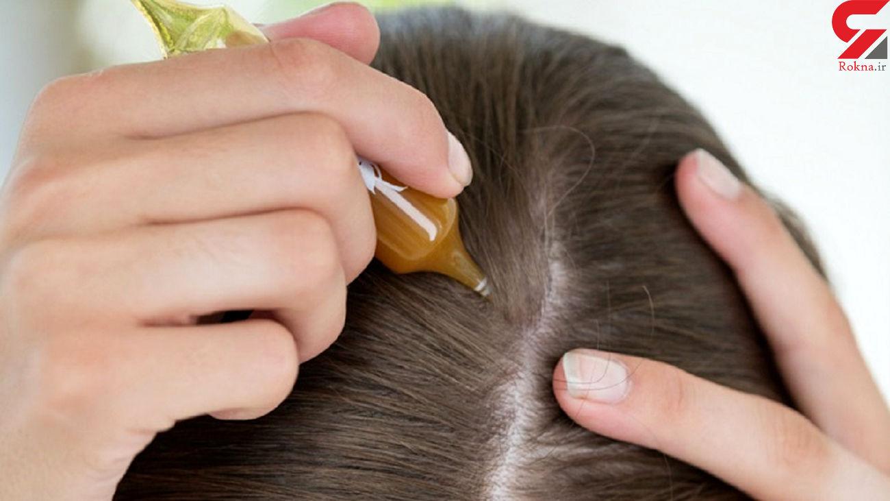این روغن به رشد موهایتان می پردازد