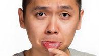 درمان های موثر آفت دهان