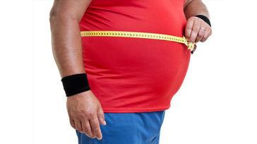کدام جراحی برای درمان چاقی توصیه می شود؟