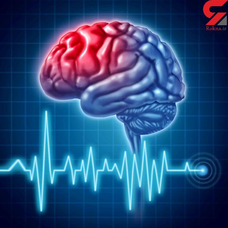 نشانه های هشدار دهنده سکته مغزی