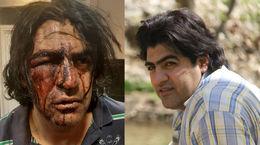 زورگیران بی رحم راننده اسنپ کرمانشاهی را چاقو چاقو کردند + فیلم و عکس تکاندهنده