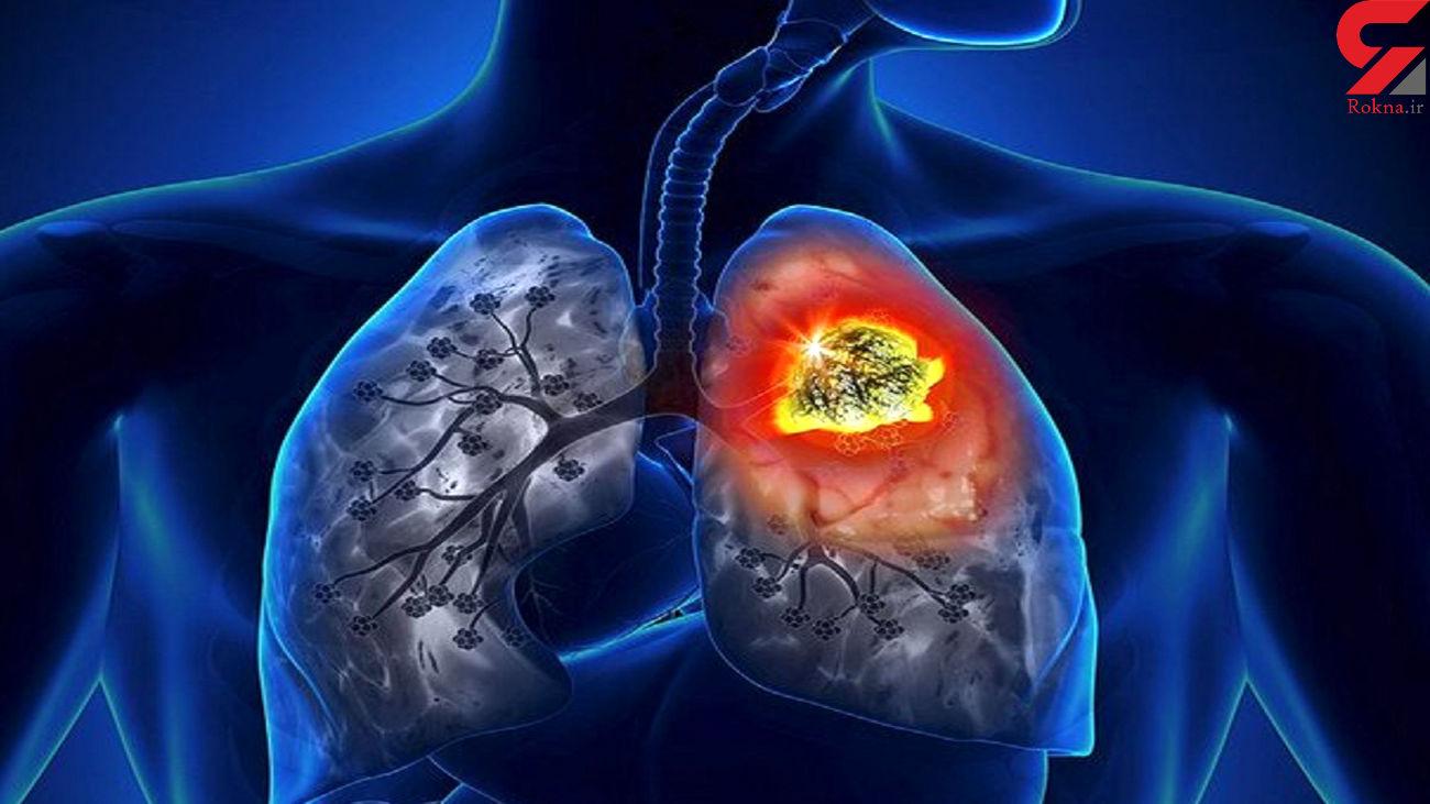 چطور سرطان ریه را خنثی کنیم؟