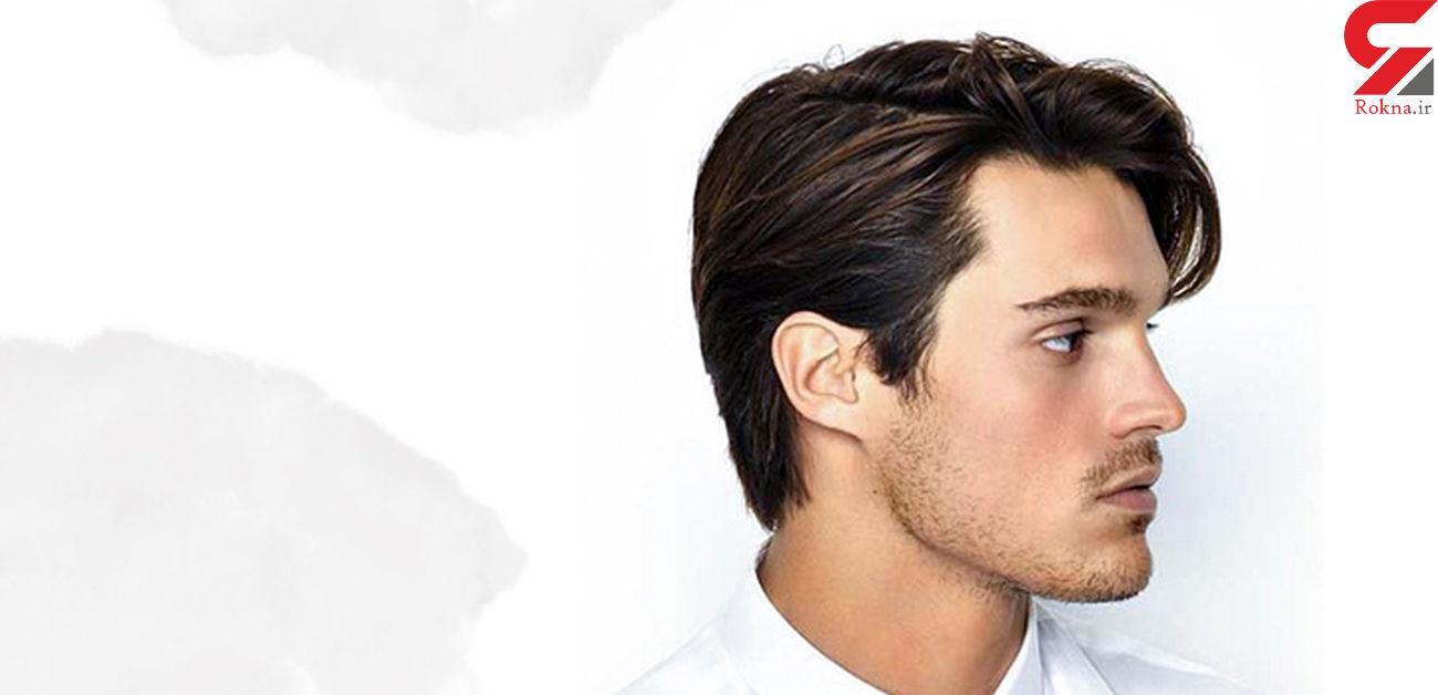 نکات پروتز مو چیست و چه جزئیاتی را باید دربارهی آن رعایت کرد؟