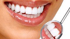 7 دلیل که دشمن زیبایی دندان ها هستند