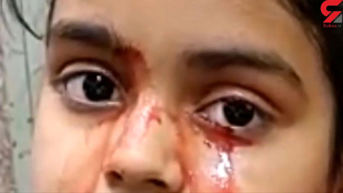 دختری 11 ساله به جای اشک خون گریه می کند + عکس