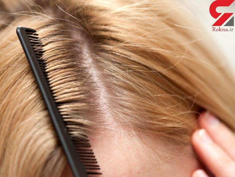 ارتباط کم خونی و ریزش موی شدید
