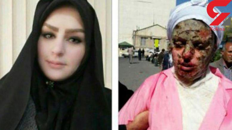 آخرین عکس از دختر زیبای تبریزی که با اسید سوخت! + جزییات