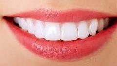 لبخندی زیبا با راهکارهای سفیدکردن دندان ها
