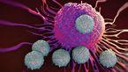 علائمی که هشدار ابتلا به سرطان را گوشزد می کنند