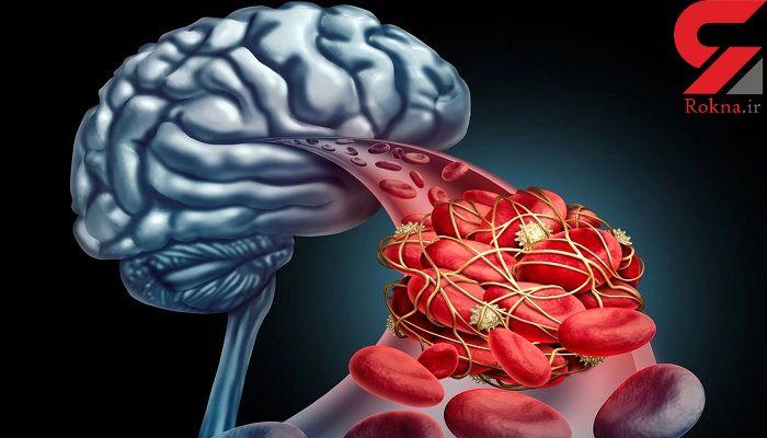 سکته مغزی چه نشانه هایی دارد؟/علائم اولیه ای که باید جدی گرفت!