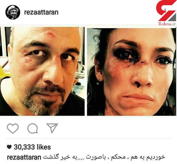 کبودی چشمان رضا عطاران با جنیفر لوپز در یک بخورد! +عکس